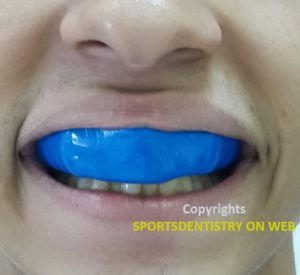 Mouthguard |
